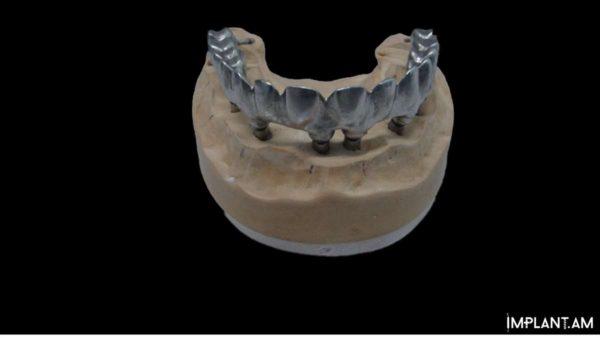 8 имплантатов в области верхней и 4 в области нижней челюсти