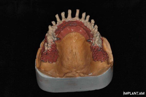 По 4 имплантата в области верхней и нижней челюстей
