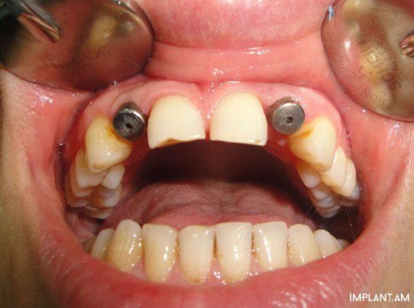 По одному имплантату в области 12 и 22 зубов