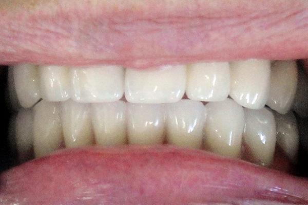4 имплантата в области нижней челюсти