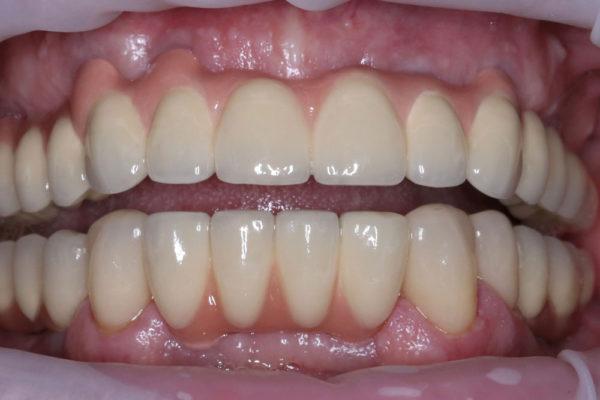 15 имплантатов в области обеих челюстей