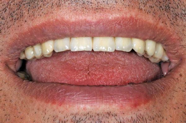 7 имплантатов в области верхней челюсти